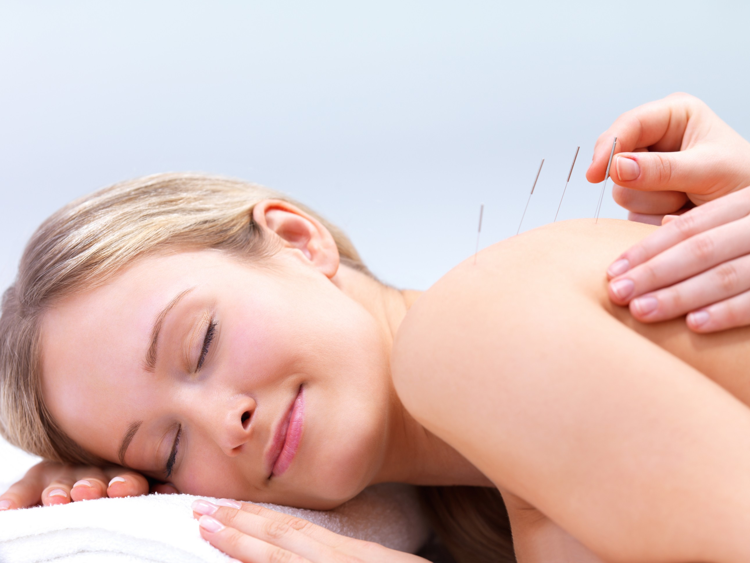 Meridian Acupuncture & Wellness acupuncture services in Portland, Oregon.