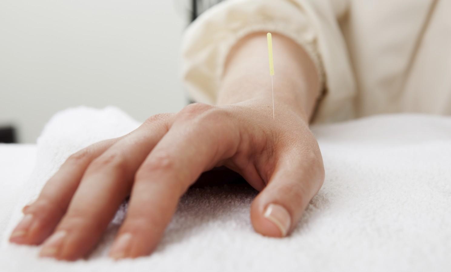 Acupuncture Portland, Oregon Meridian Acupuncture & Wellness