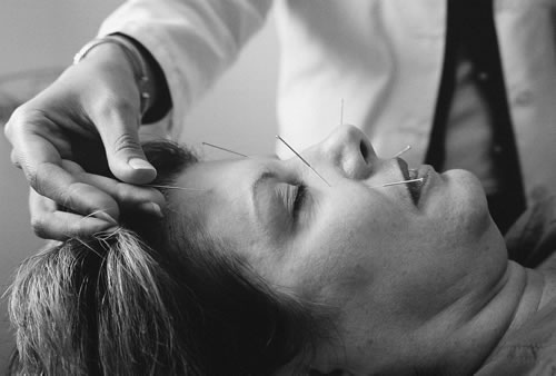 Studies find acupuncture treatment and prevention uses.