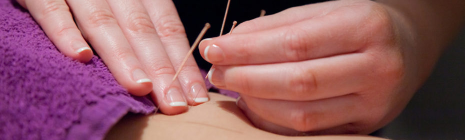 Portland area cancer patients acupuncture.