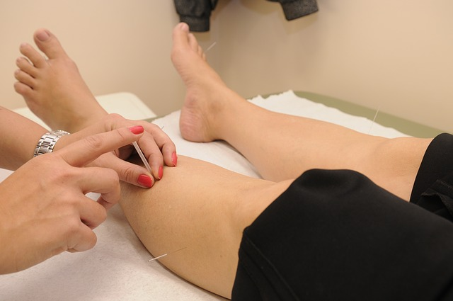 Natural medicine & acupuncture for strains & sprains.